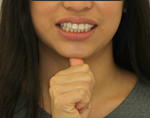 Remedial Jaw Exercises for Sore Joints