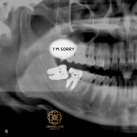 We don't always suggest removal of wisdom teeth, but when we do it's to prevent something like this.